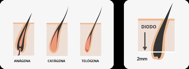 Como entender la depilación láser