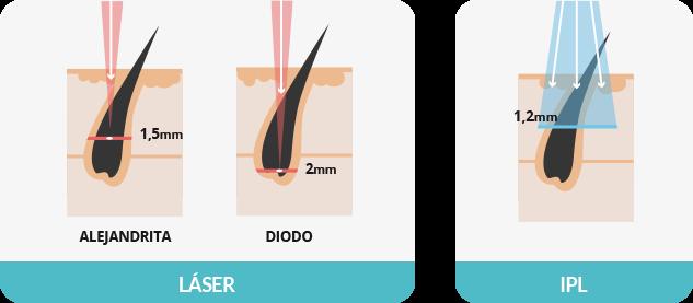 Cómo entender la depilación
